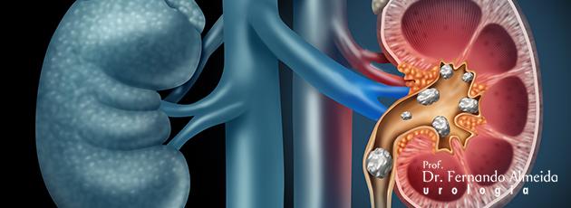 Entenda o cálculo renal